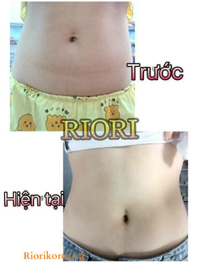 Kết quả giảm mỡ bụng rõ rệt của khách hàng sau 2 tuần sử dụng gel massage tan mỡ bụng Riori