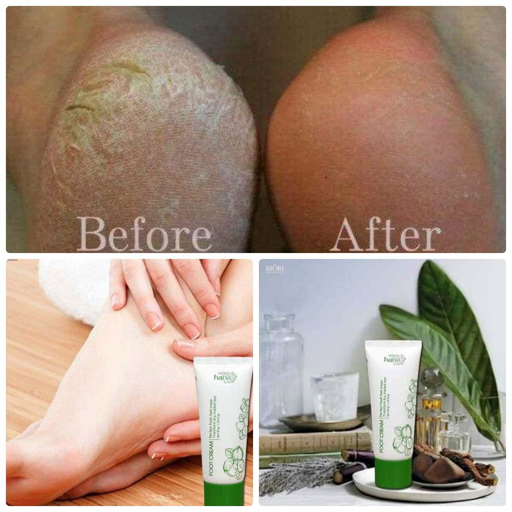 Kem dưỡng da chân Foot Cream Riori