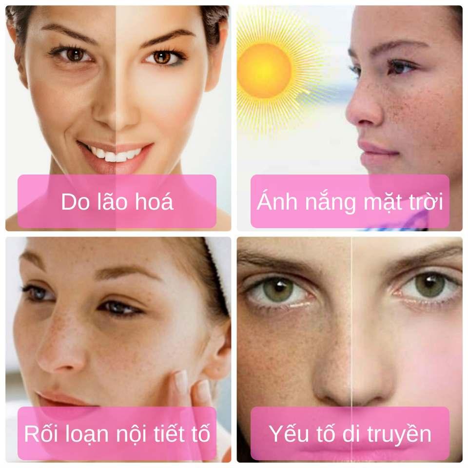 Các nguyên nhân dẫn đến nám da