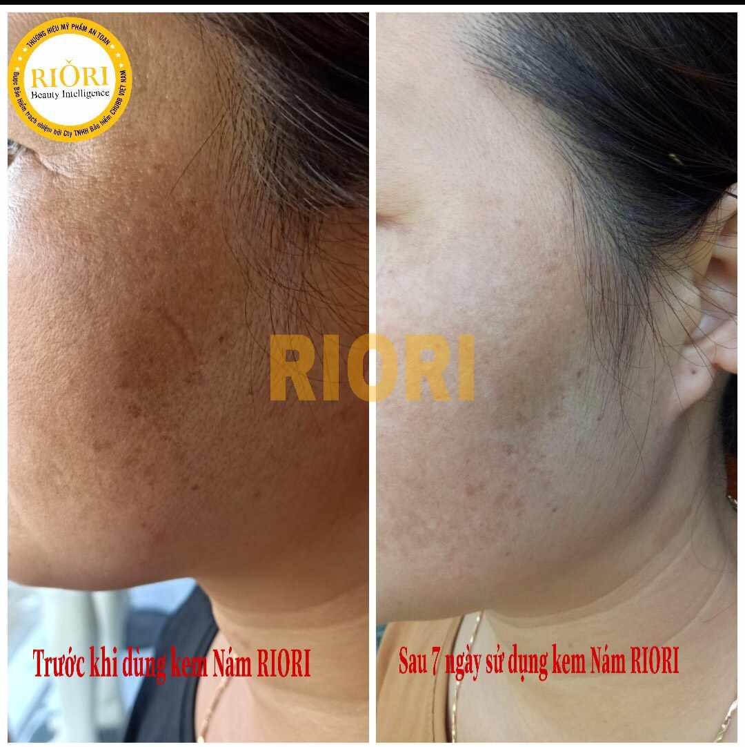 Kết quả trước và sau khi sử dụng 7 ngày kem nám kem trị nám tàn nhang Melasma Conllagen Riori